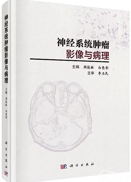 神经系统肿瘤影像与病理