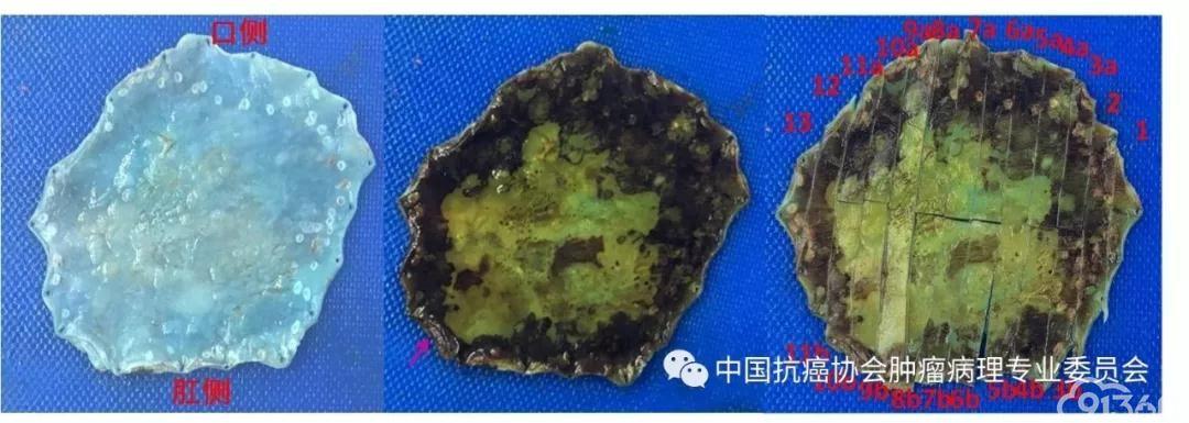 图1内镜下黏膜切除术(EMR)/内镜下黏膜下剥离术(ESD)标本取材示意图(箭头为最近侧切缘)