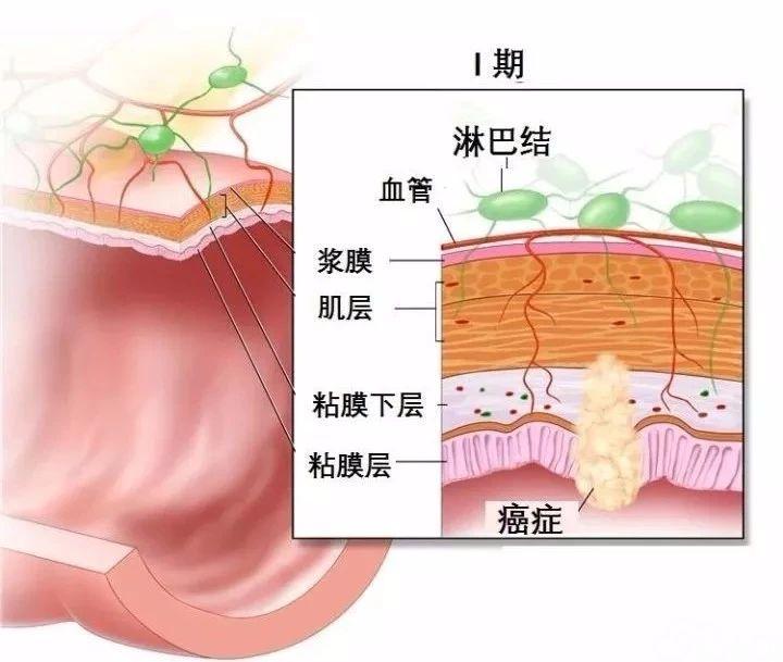 结肠镜病理报告怎么看?一文读懂