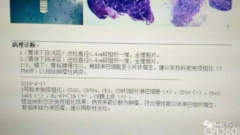 一文看懂胃镜活检报告