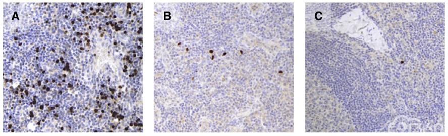 儿童和成人淋巴结中的良性TdT阳性细胞:潜在的诊断陷阱(主要内容翻译)