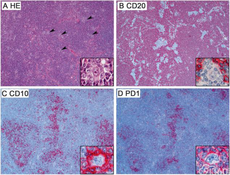 CD30在滤泡性T细胞淋巴瘤的肿瘤性T细胞表达是霍奇金淋巴瘤鉴别诊断中一种有帮助的诊断工具