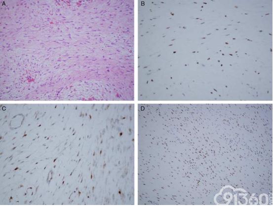 β-Catenin和LEF1免疫组化染色在韧带样型纤维瘤病和其选择性拟似病变中的比较以及LEF1阳性在瘢痕中的意外发现