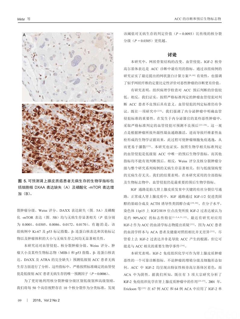 肾上腺皮质癌的诊断和预后生物标志物