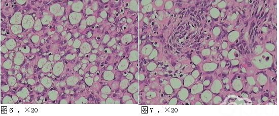 卵巢印戒细胞间质瘤1例并文献复习