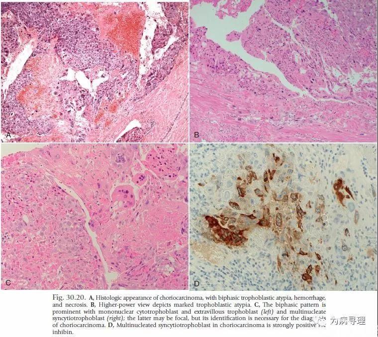 卵巢非妊娠性绒毛膜癌