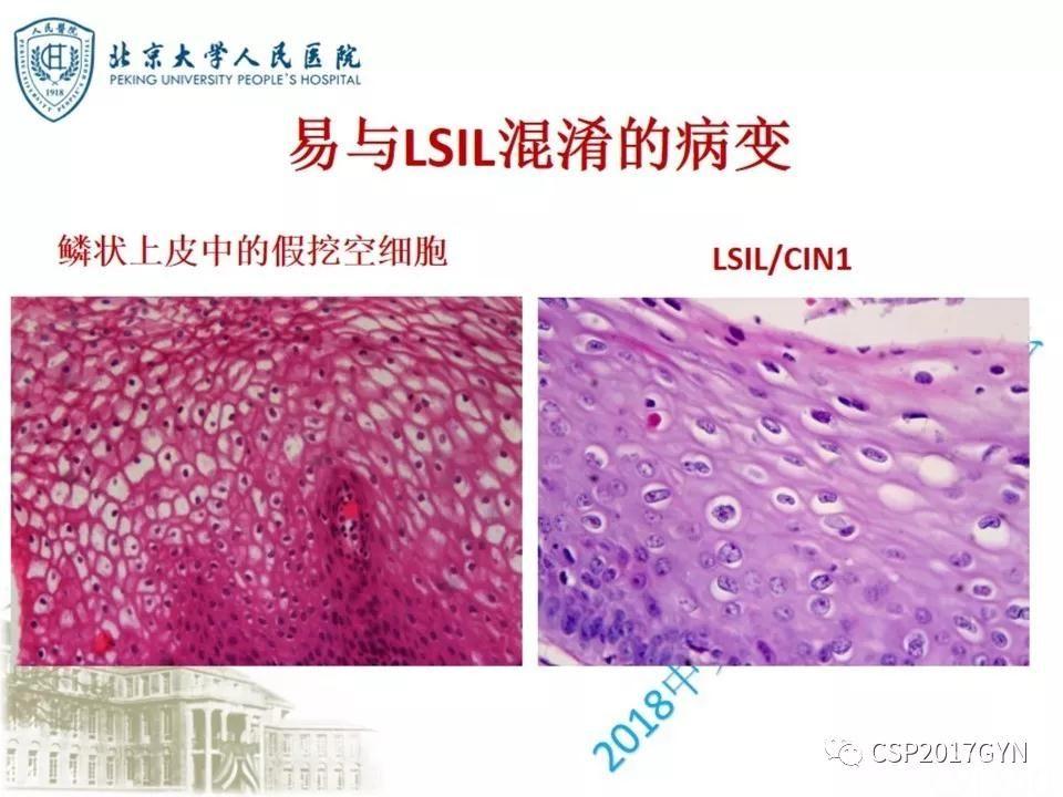 宫颈鳞状上皮内病变病理诊断中问题