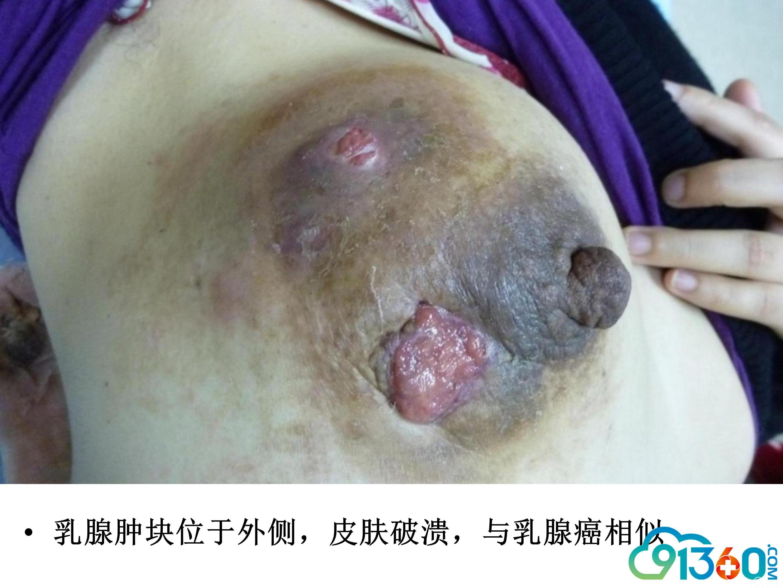 肉芽肿性小叶性乳腺炎进展与思考