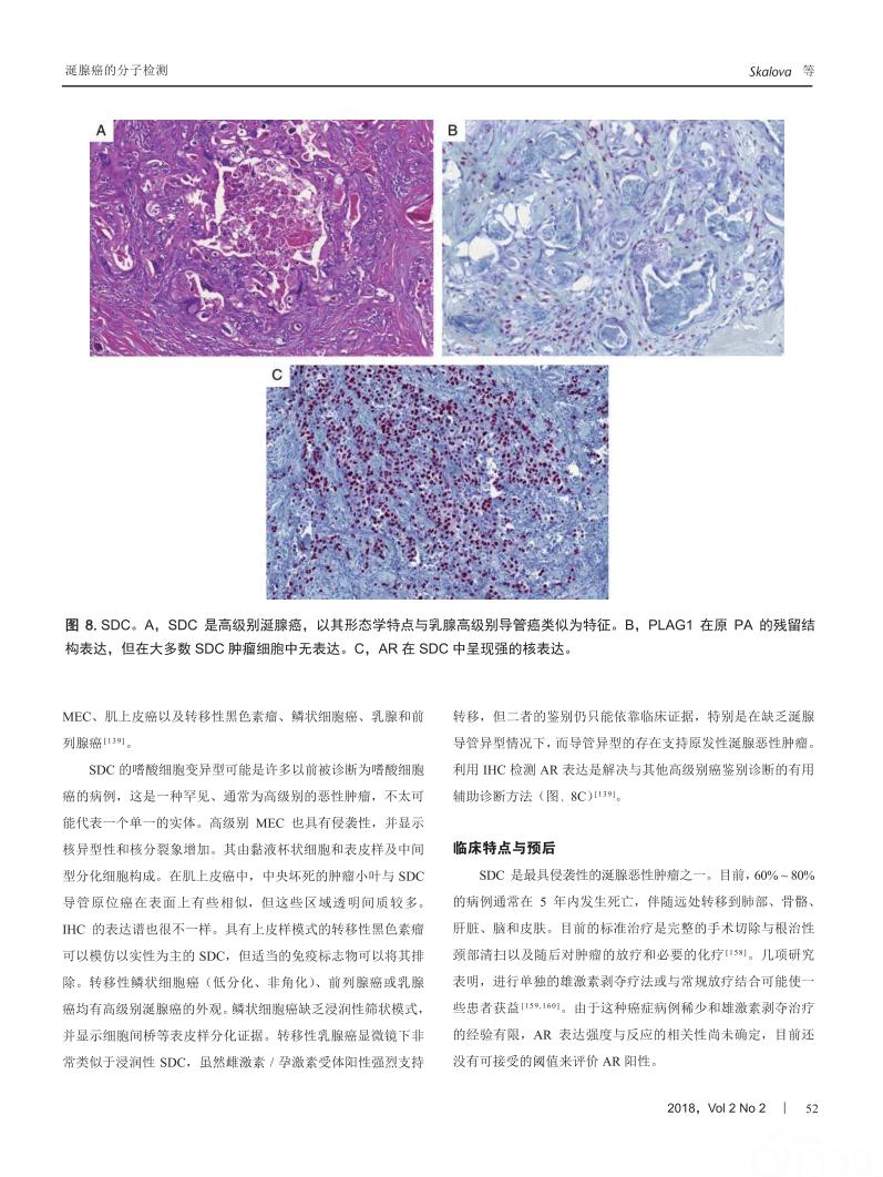 分子检测在涎腺癌鉴别诊断中的作用
