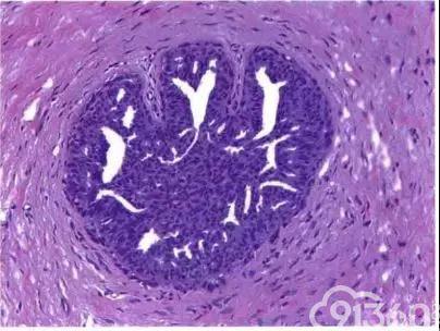 乳腺普通型导管增生与非典型导管增生的区别