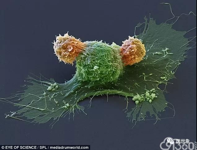 "CAR-T细胞与癌细胞""搏斗""场景"