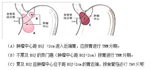 附录十:胃食管结合部示意