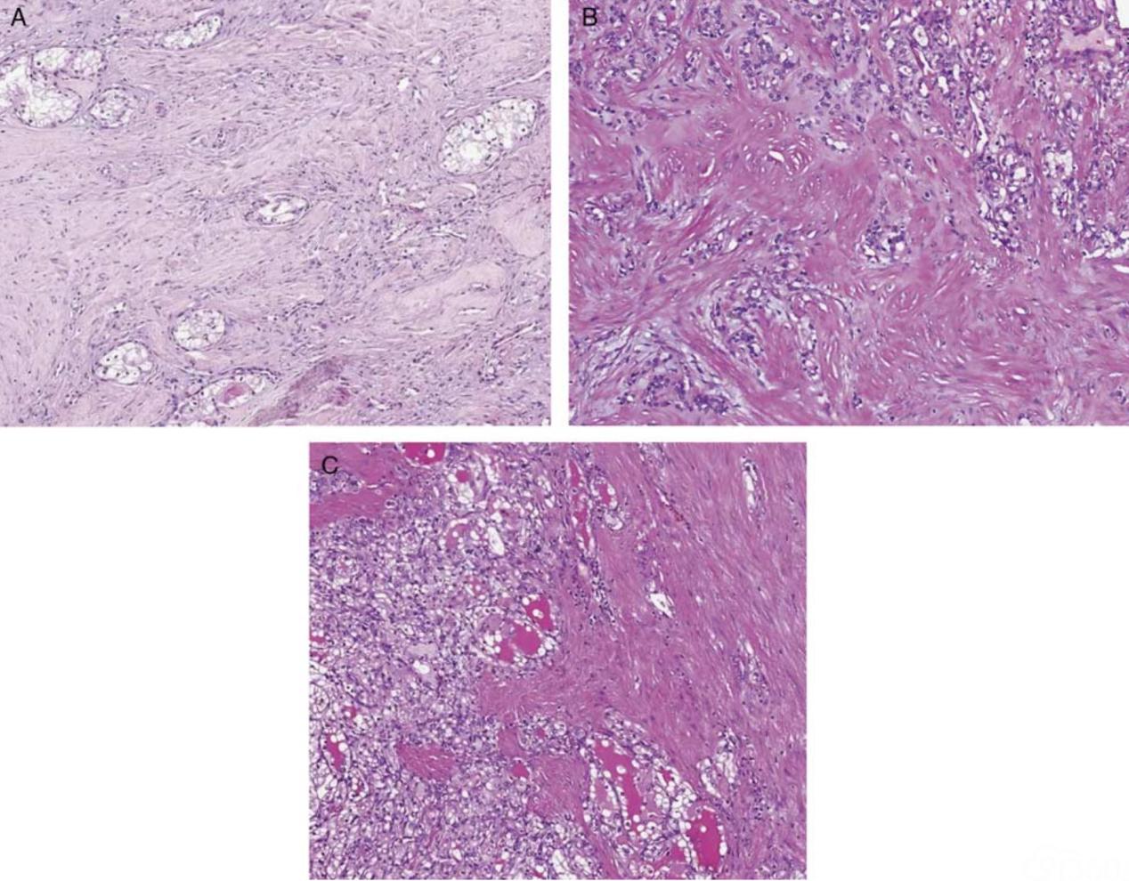 伴平滑肌间质的肾细胞癌