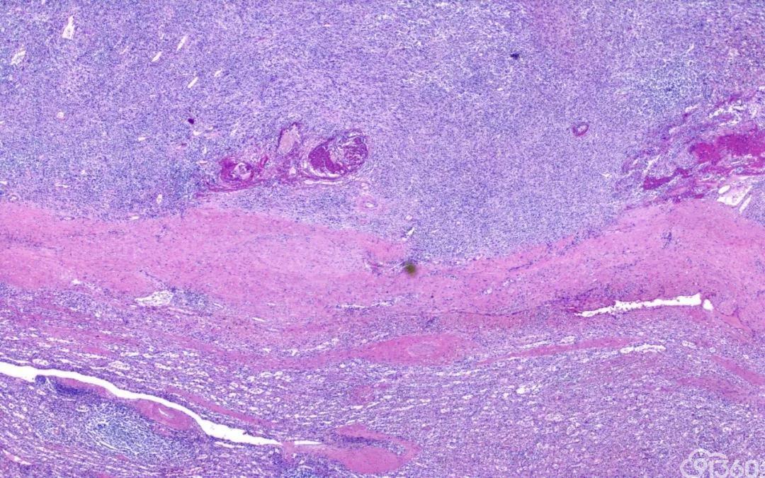 炎性假瘤样滤泡树突细胞肉瘤