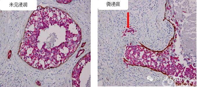 免疫组化在乳腺病理诊断中的应用