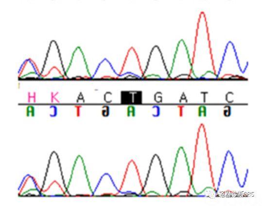 MYD88 L265P突变与淋巴浆细胞淋巴瘤
