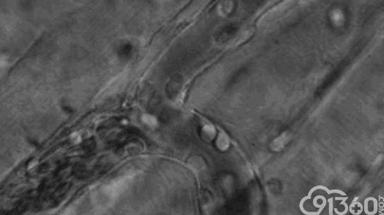 微观摄影下的震撼战争:人体免疫细胞如何杀死癌细胞!